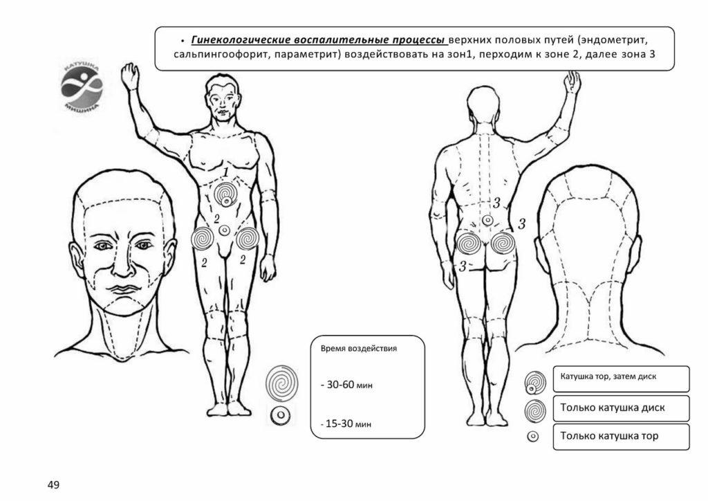 Гинекологические воспалительные процессы
